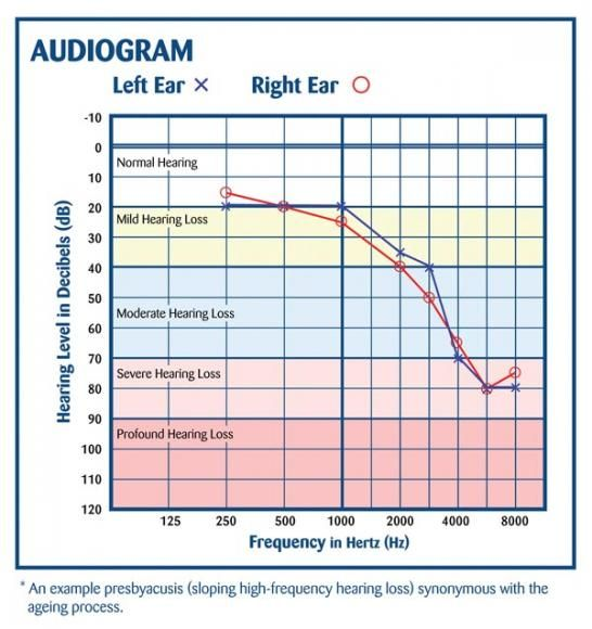 audiogram presbyacusis