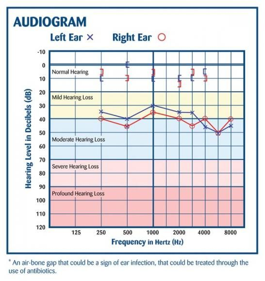 audiogram air-bone